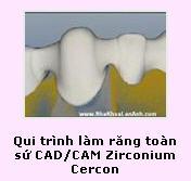 http://nhakhoalananh.wordpress.com/2007/11/24/clip-qui-trinh-lam-rang-toan-s%e1%bb%a9-cadcam-zirconium-cercon/